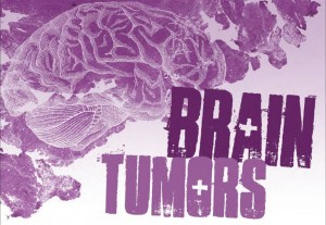 cell phone brain tumors