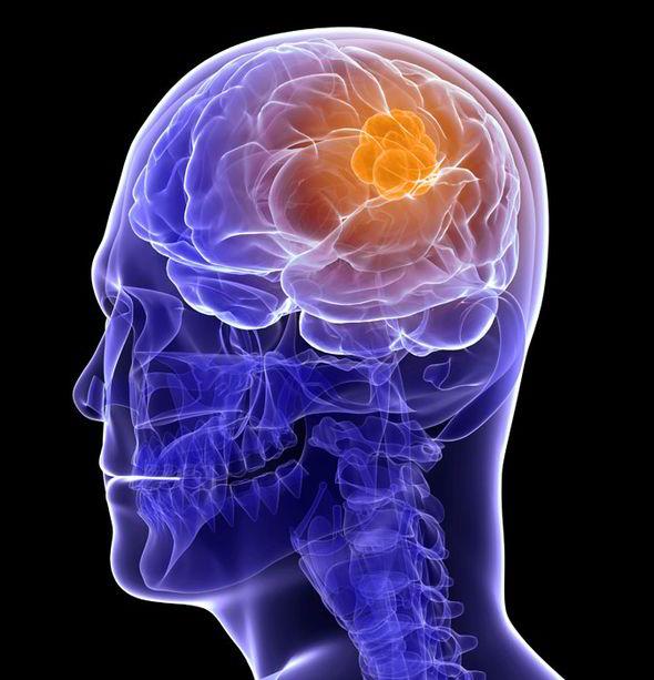 brain tumor cell phone