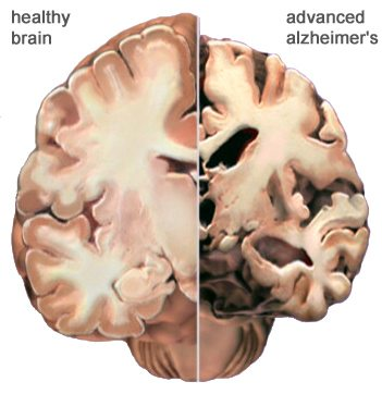 healthy-vs-advanced-alzheimer-brain