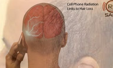 Hair Loss Cell Phone Radiation Risk